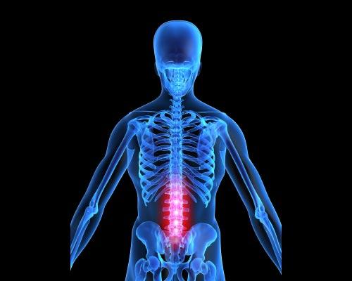 Κλινικά σημεία του χαμηλού οσφυικού πόνου